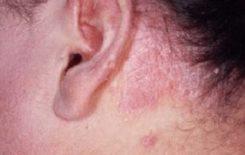 мокнет за ушами у взрослого лечение
