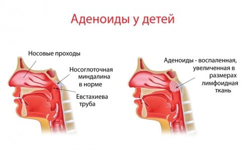 Воспаление аденоидов у детей является возможной причиной тубоотита