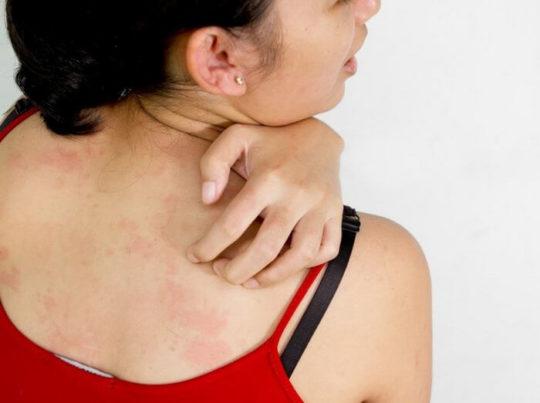 Народные рецепты могут вызывать аллергию
