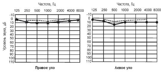 Пример аудиограммы