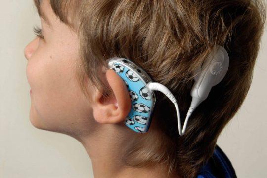 Кохлеарное слухопротезирование