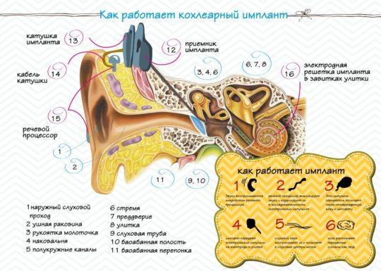 Работа импланта