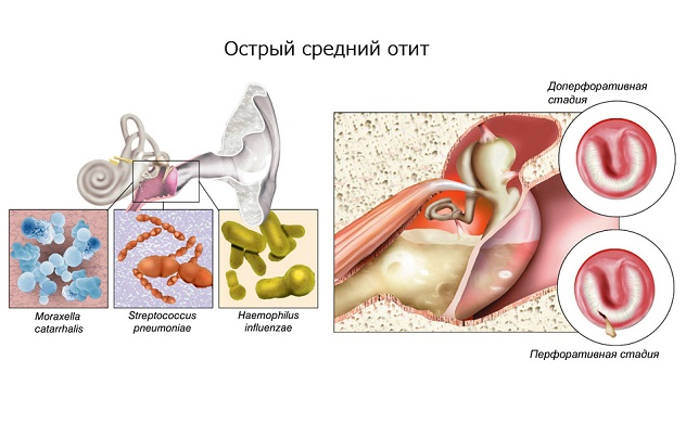 Как лечить стоматит на внутренней стороне губы