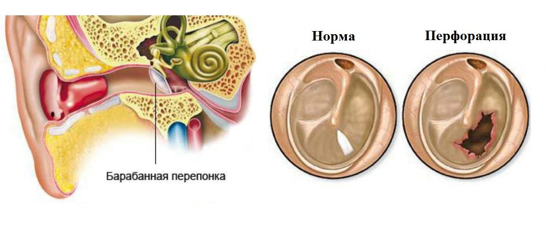 данном форум звенит в ушах после отита как лечить виды термобелья