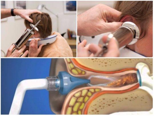 Промывание уха с помощью шприца Жане