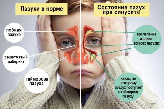 Синусит, гайморит, насморк могут быть причинами отитов