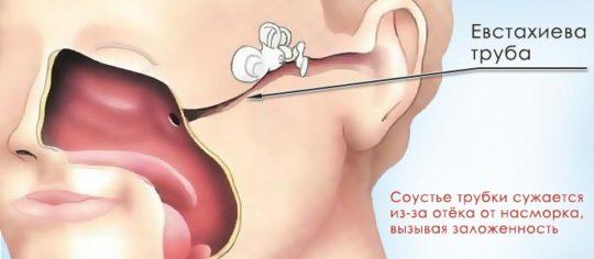 Причиной экссудативного отита является отек евстахиевой трубы и носоглотки