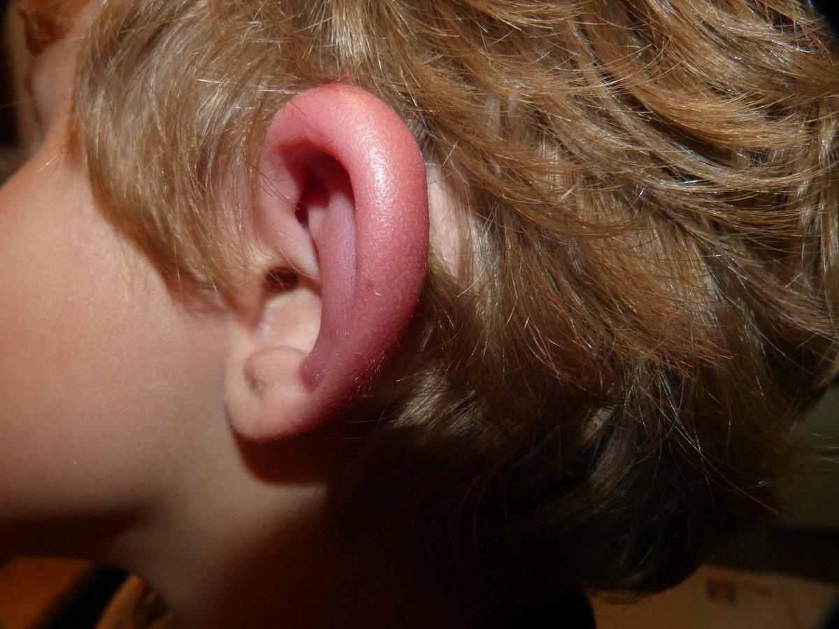 у ребенка сильно опухло около ухо и щека краска для потолка: