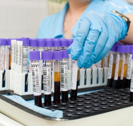 Чтобы выяснить причину гипертрихоза, необходимо пройти диагностику и сдать анализы