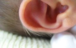 Волосы на ушах у новорожденного как убрать