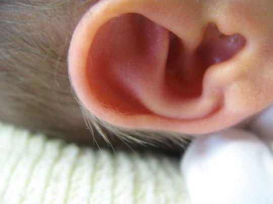 Гипертрихоз ушей
