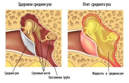 Гнойный средний отит - возможное показание к проведению тимпанопластики