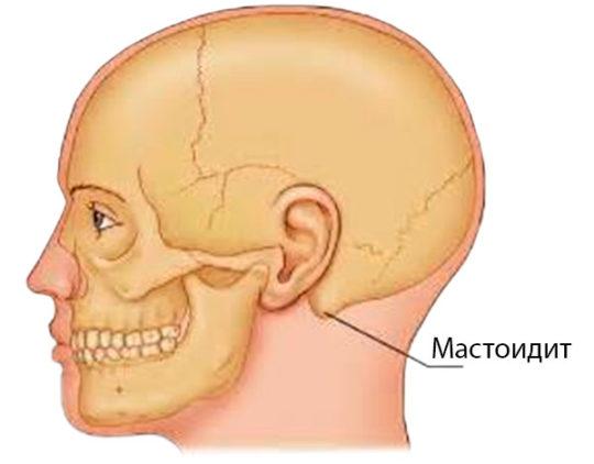 Место возникновения мастоидита