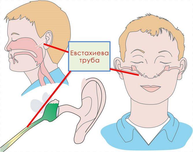 При промывании носа вода попадает во фронтальные пазухи