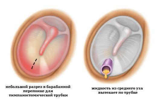 Для лечения гнойного отита применяется шунтирование перепонки