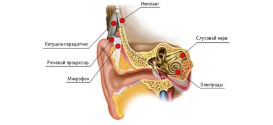 Схема кохлеарного слухопротезирования