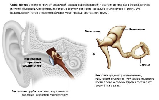 При затяжном течении серозного отита могут возникнуть осложнения на слуховых косточках