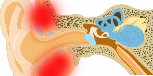 Сужение слухового прохода и гиперемия могут указывать на возникновение наружного отита