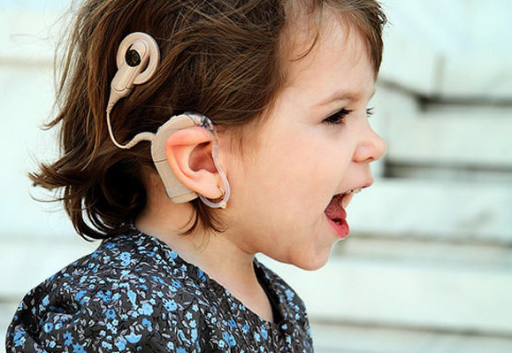 pros and cons of cochlear implants essay