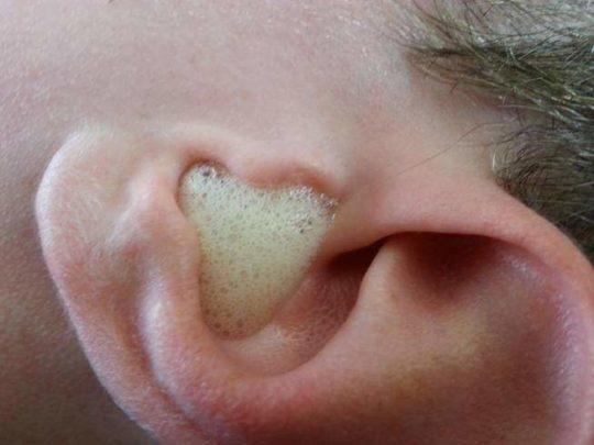 При закапывании перекиси водорода должно быть шипение в ушах