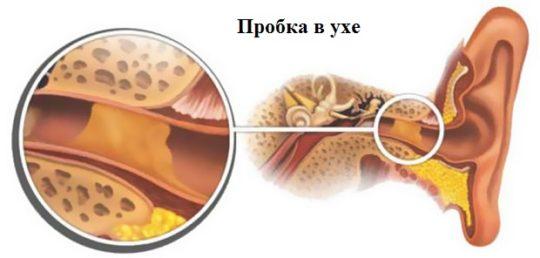 Препараты против серной пробки в ухе
