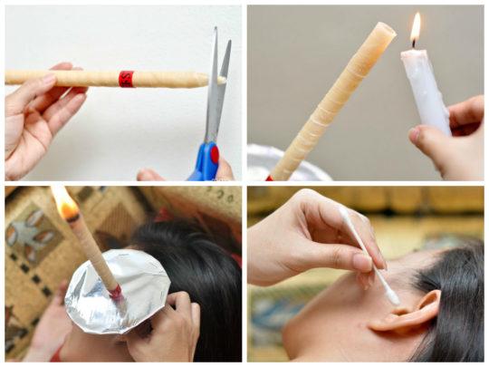Этапы лечения с помощью ушной свечи