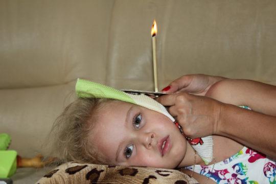 Использовать ушную свечу для лечения ребенка можно только с согласия врача
