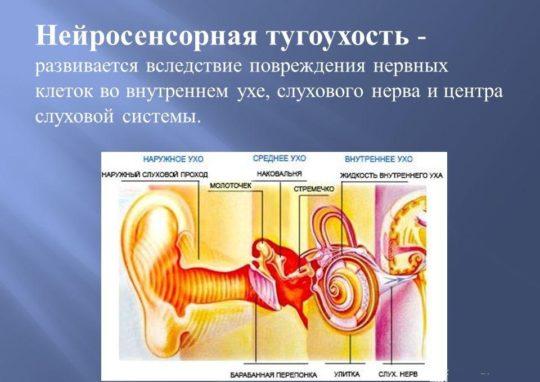 Схема нейросенсорной тугоухости