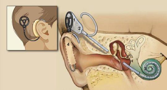 Схема кохлеарной имплантации