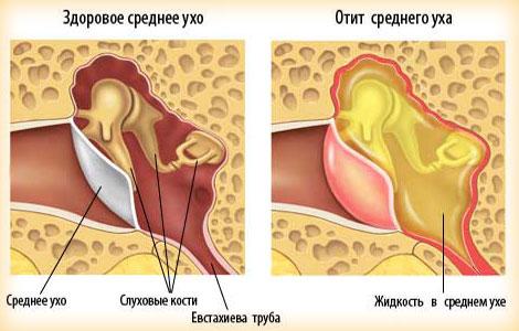 Евстахиит (тубоотит) возникает в среднем ухе