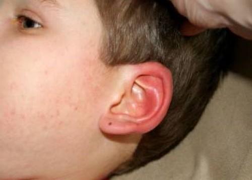 Аллергия - частая причина ушных отеков