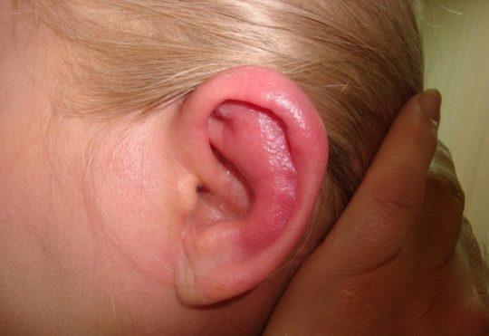 Красное ухо у ребенка снаружи и температура thumbnail